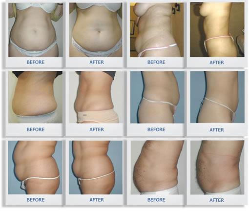 Reduce visceral abdominal fat